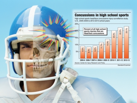 concussion-high-school