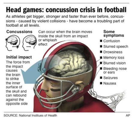 Sports American Football Amp Concussions A Love Hate Bond