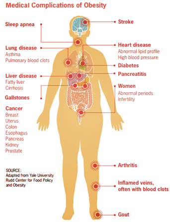 obesity-medical-conditions